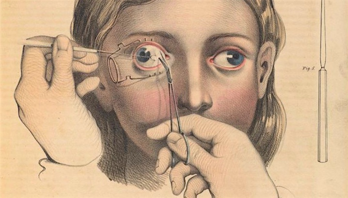 Not for the faint-hearted: Gruesome medical illustrations from the 19th-century (NSFW)