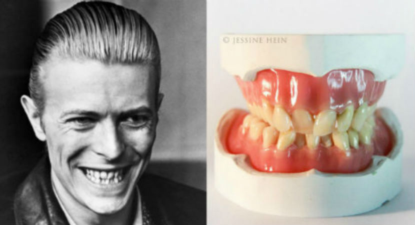Artist creates dentures of David Bowie's old teeth