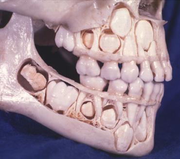 X-rays of kids' skulls as their baby teeth get pushed out and their permanent teeth grow in