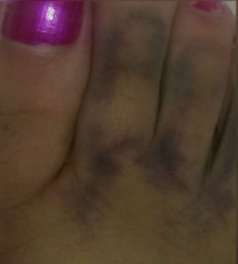 Woman claims to see Jesus on bruised toe