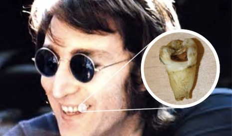 Beatlemaniac hell-bent on generating army of John Lennons from tooth DNA