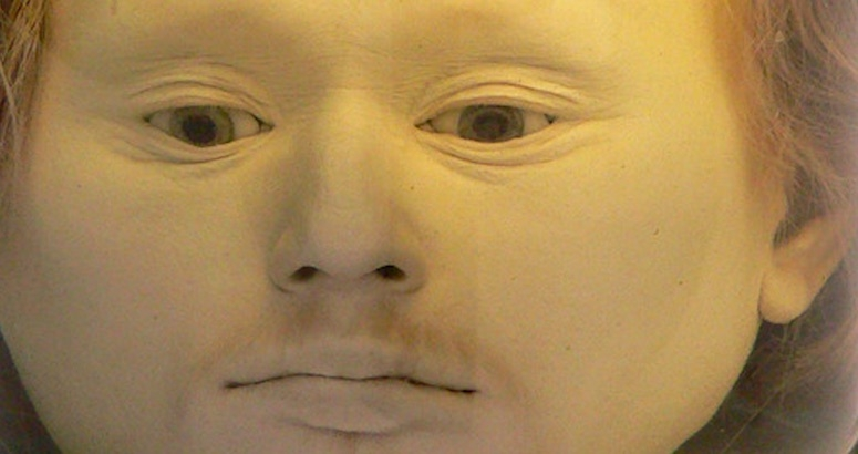 This head of a serial-killing bandit has been preserved in a jar since 1841