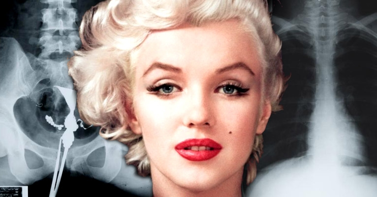 You can own Marilyn Monroe's pelvic x-ray because nothing is too creepy for a true fan