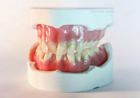 Artist creates dentures of David Bowie's old teeth