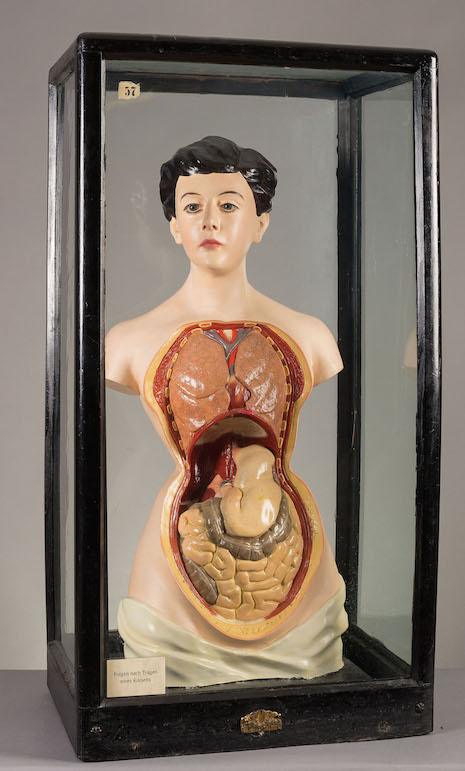 A female anatomical figure displaying the effects of wearing tight corseting