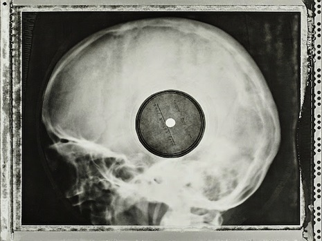 'Bone music': Soviet-era bootleg records of banned rock and jazz pressed on X-ray plates